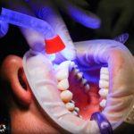 Zła droga żywienia się to większe niedostatki w zębach oraz także ich brak